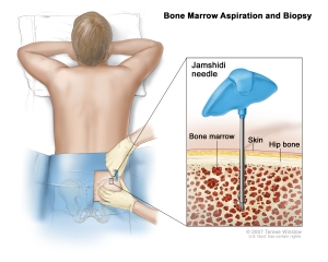 Representation of the BMA procedure.